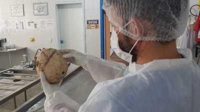 Peritos do IML identificaram duas vítimas por arcada dentária (1).jpeg