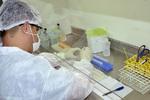 O objetivo é produzir conhecimentos científicos válidos, confiáveis e acessíveis para incorporação direta pelos serviços de saúde.